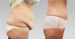 Chirurgie esthetique ventre Tunisie